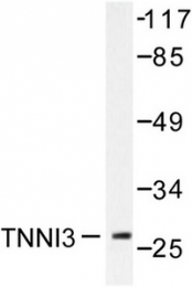 AP06439PU-N - Cardiac Troponin I