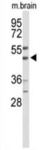 AP54567PU-N - WIPI-2
