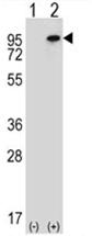 AP54563PU-N - WHSC1L1 / NSD3