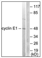 AP31751PU-N - Cyclin E1