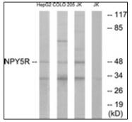 AP31755PU-N - NPY Receptor 5 / NPY5R