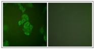 AP31758PU-N - Neuron specific enolase
