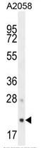 AP50203PU-N - AP3 complex subunit sigma-1 / AP3S1