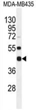 AP54549PU-N - WDR51B