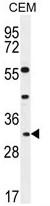 AP50212PU-N - Apolipoprotein F / Apo F