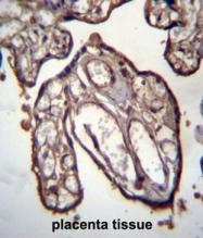 AP50226PU-N - Arfaptin-1