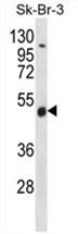 AP54540PU-N - WDR34