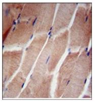 AP53722PU-N - RPL5