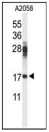 AP53732PU-N - RPS11