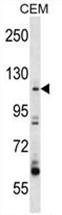 AP50237PU-N - ARHGEF1