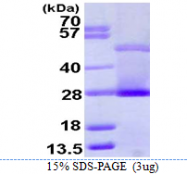 AR39128PU-L - C-reactive protein (CRP)