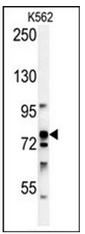 AP53743PU-N - RPS6KA1