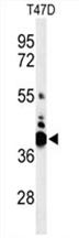 AP54528PU-N - VTCN1 / B7H4