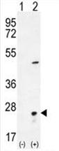 AP54522PU-N - Visinin-like protein 1 / HLP3