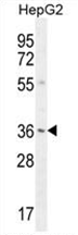 AP54520PU-N - VSIG1