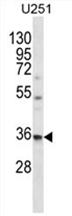 AP54515PU-N - VPS37B