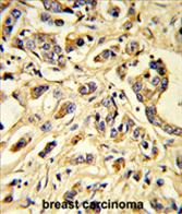 AP54509PU-N - VEGFR-1 / Flt-1