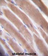 AP54506PU-N - VEGF-C / Flt4-L