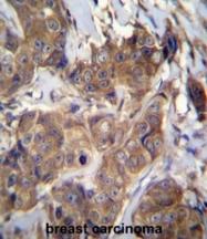 AP50307PU-N - ATP6V1B1
