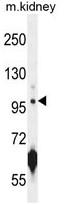 AP50310PU-N - CARNS1 / ATPGD1