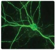 AP31813PU-N - Neurofilament H (200 kD)