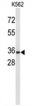 AP54475PU-N - Uroplakin-1a (UPK1A)