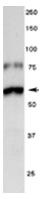 AP31824PU-N - Tyrosine 3-monooxygenase (TH)