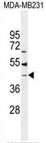 AP50332PU-N - B4GALT6