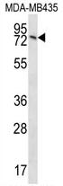 AP54462PU-N - SUN2 / UNC84B