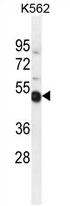 AP54424PU-N - TXNDC6 / TXL2