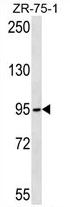 AP54420PU-N - TUBGCP2