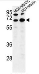 AP50368PU-N - Bestrophin-2
