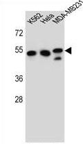 AP54418PU-N - TUBB6