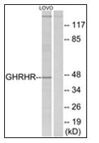 AP31828PU-N - GHRH receptor