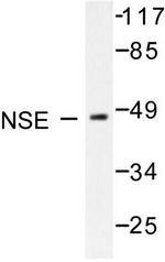 AP06253PU-N - Neuron specific enolase