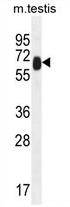 AP54399PU-N - TTC39B / C9orf52