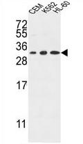 AP54377PU-N - Tetraspanin-2 (TSPAN2)