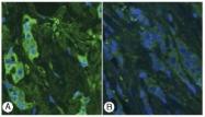 AP02233SU-S - Thymosin beta-4