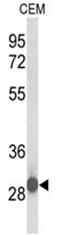 AP50473PU-N - C15orf29