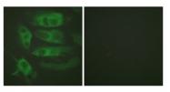 AP31835PU-N - Beta-2 adrenergic receptor