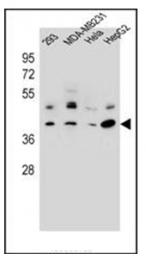 AP53748PU-N - RRAGC / Rag C
