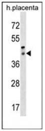 AP53751PU-N - RRH