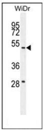 AP53761PU-N - RTN4IP1