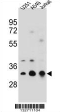 AP54345PU-N - Tropomyosin-4 (TPM4)