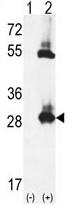 AP54344PU-N - Thiamine pyrophosphokinase 1 (TPK1)
