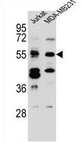 AP54327PU-N - TNRC4 / BRUNOL1
