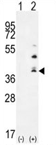 AP54314PU-N - TNFSF15