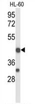 AP54308PU-N - CD264 / TRAILR4