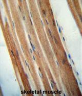 AP54284PU-N - TMCO7