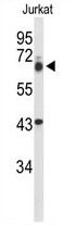 AP54266PU-N - TLE1